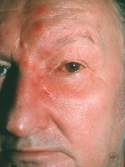 shingles-treatment-eye.jpg