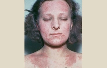 atopic-dermatitis_symptoms_adult.jpg