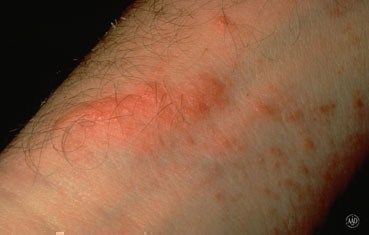 poison-ivy-symptoms-rash.jpg
