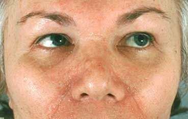 seborrheic-dermatitis-symptoms_parkinsons.jpg